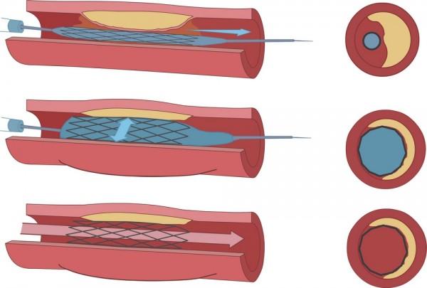 این ژنها یک بخش جزئی از قلب را به یک ضربانساز زیستی با قابلیت عادی نگهداشتن ضربان قلب تبدیل کردند