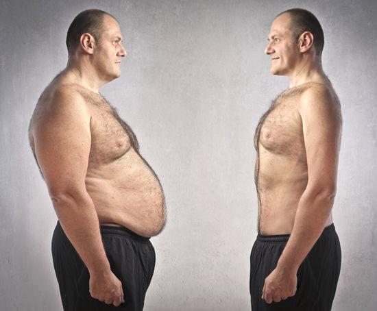 بیست درصد موارد چاقی علت ژنتیکی دارد