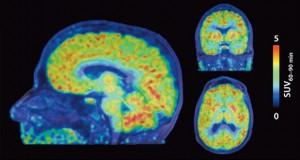 دانشمندان توانستند برای اولین بار فعالیت ژن در مغز انسان را مشاهده نمایند