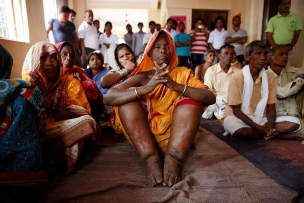 بیماری های عجیب - بیماری فیل پایی