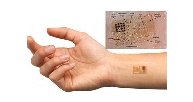 جاسازی میکروچیپ در زیر پوست