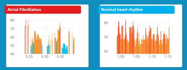 سنسور ضربان قلب اپل واچ نارسایی قلبی را با دقتی بالا تشخیص میدهد
