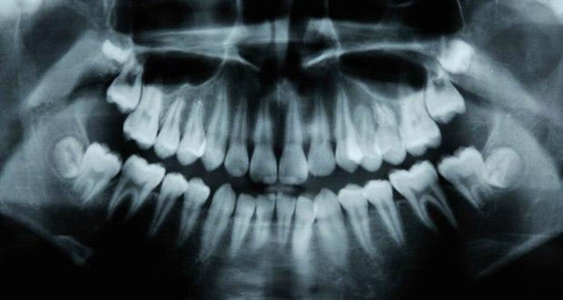 ترمیم خودکار پوسیدگی دندان