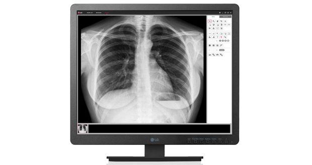 نمایشگرهای پزشکی ال جی