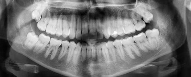 ترمیم خودکار مینای دندان نیاز به پر کردن دندان را از بین میبرد