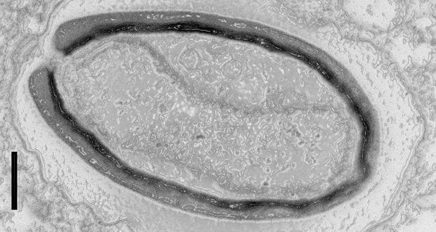 ویروس های غول آسا ژنهایی تولید میکنند که در شکلهای دیگر حیات وجود ندارند!