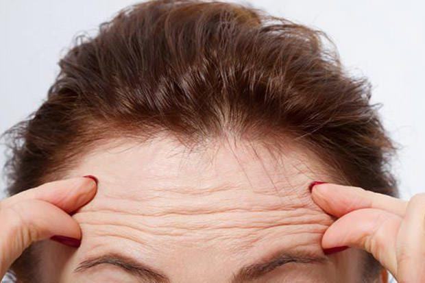 Wrinkles linked to heart disease