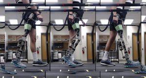 پروتزهای پا به لطف هوش مصنوعی به بیماران کمک میکنند که سریعتر و بهتر راه بروند
