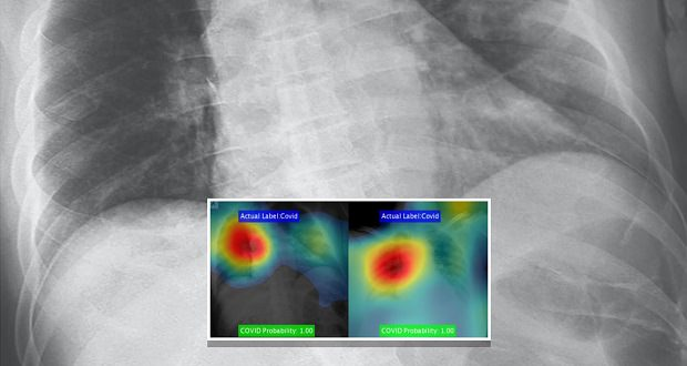 تشخیص کرونا با هوش مصنوعی و دقت ۹۸ درصدی در چند ثانیه ممکن شد