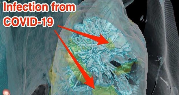 پخش ویدیویی نگران کننده در مورد تاثیر کرونا روی ریه انسان