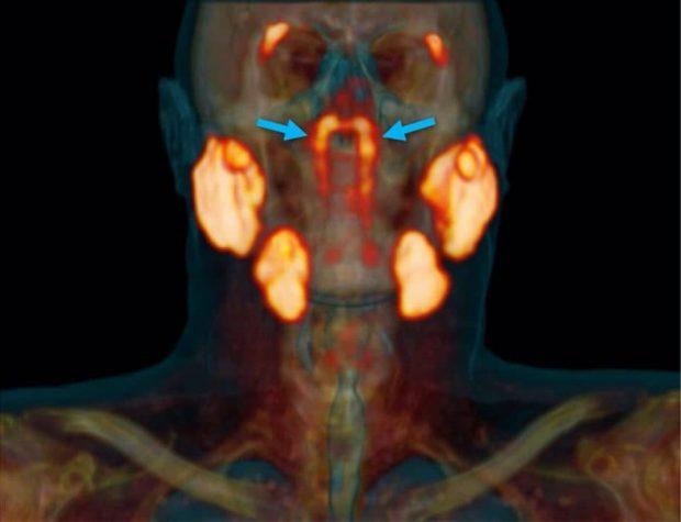 دانشمندان یک اندام جدید و ناشناخته را در بدن انسان کشف کردند