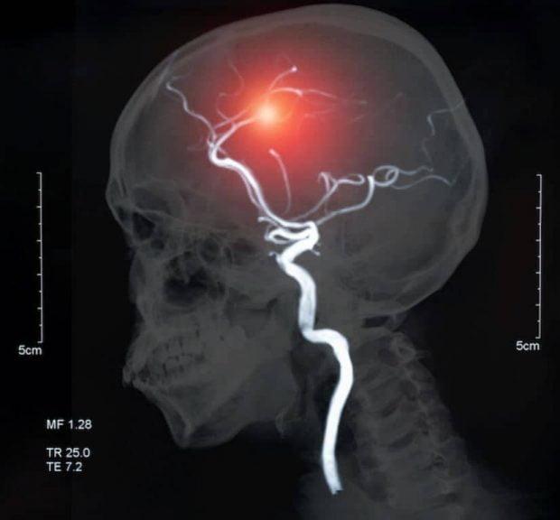 داشتن علائم افسردگی خطر سکته مغزی را بیشتر میکند
