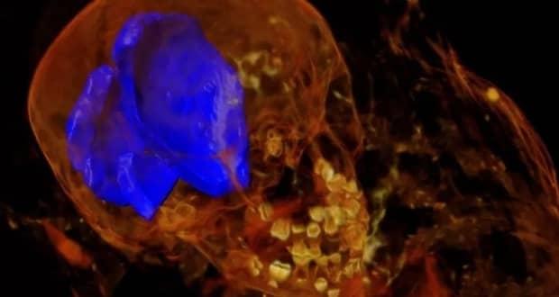 اسکن اشعه ایکس یک مومیایی مصری کشف شوکه کنندهای به همراه داشت